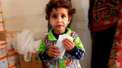 A Yemeni child suffering from malnutrition being fed at a medical centre.