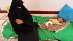 yemen-conflict-health-children-1541672304936.jpg
