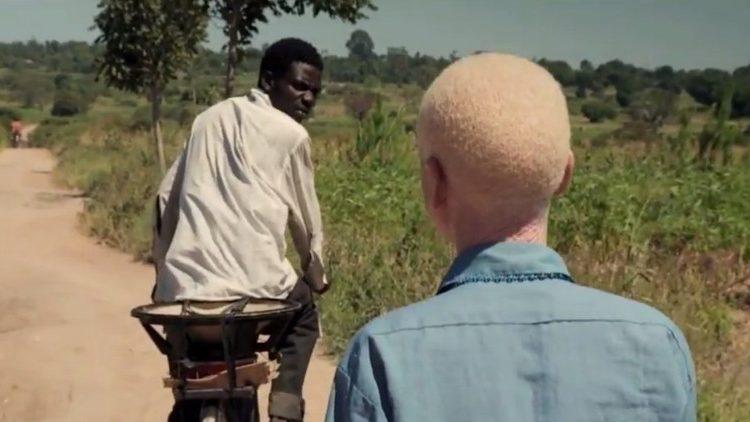 Giornata internazionale Albinismo